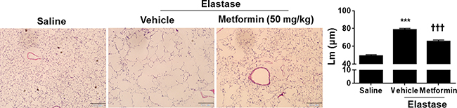 Metformin therapeutically attenuated elastase-induced airspace enlargement in mice.