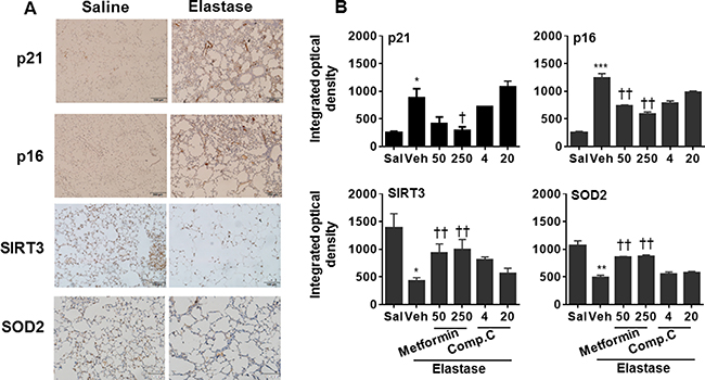 Prophylactically effect of AMPK on abundance of p16, p21, SOD2, and SIRT3 proteins in mouse lungs with emphysema.