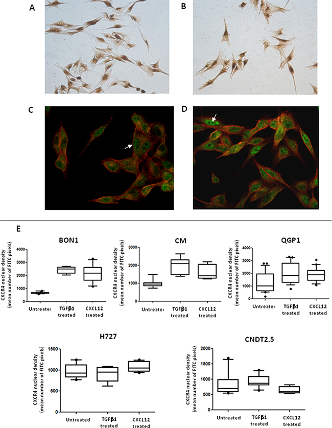 Activation of EMT is associated with CXCR4 nuclear accumulation.