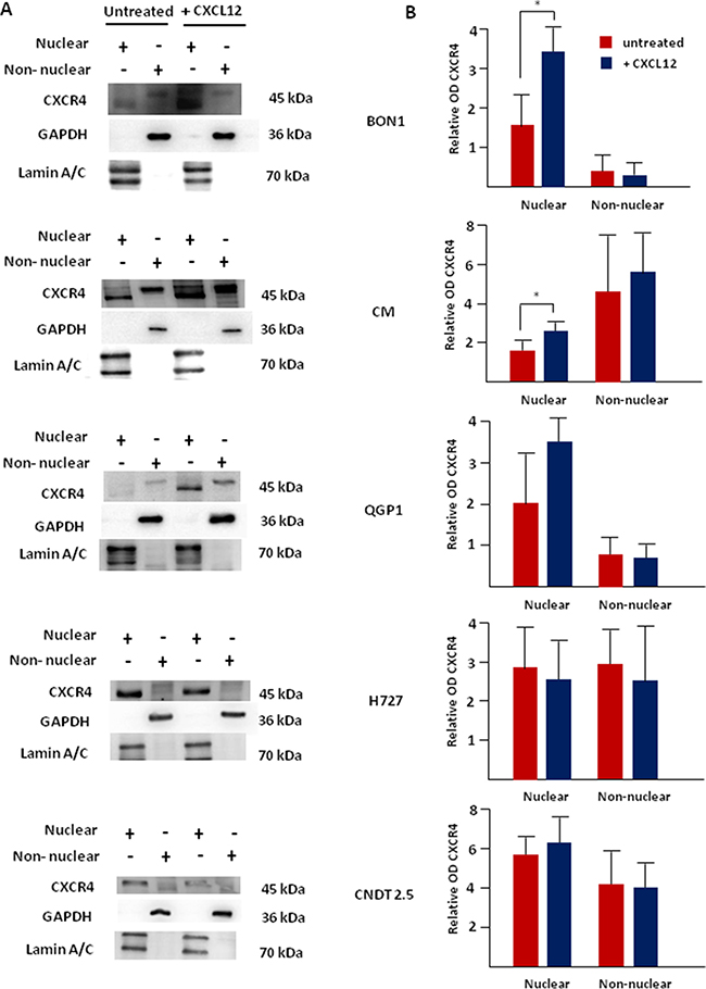 Nuclear accumulation of CXCR4 following its agonist stimulation is predominant in CXCR4high/CXCL12low NET cell lines.