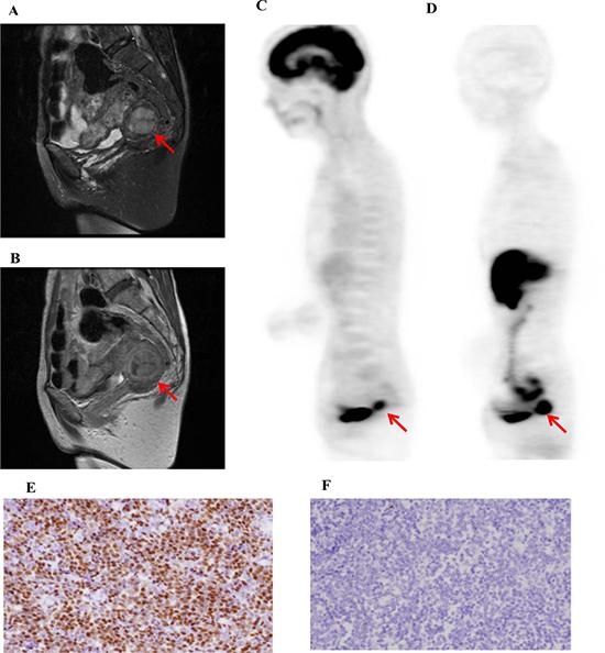 A representative case of low-grade uterine endometrial stromal sarcoma (L-ESS, 58-y-old patient, FIGO stage I).