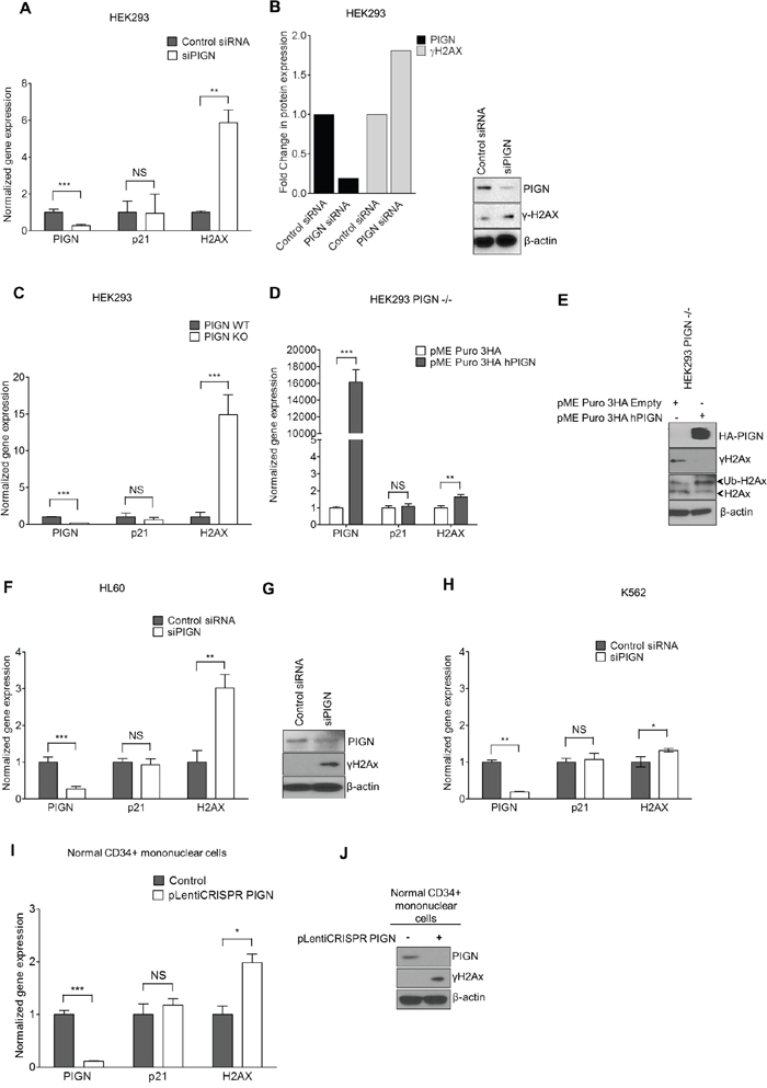 PIGN gene expression suppression was associated with genomic instability; and reintroduction of PIGN gene expression restored genomic stability in a TP53-pathway independent manner.