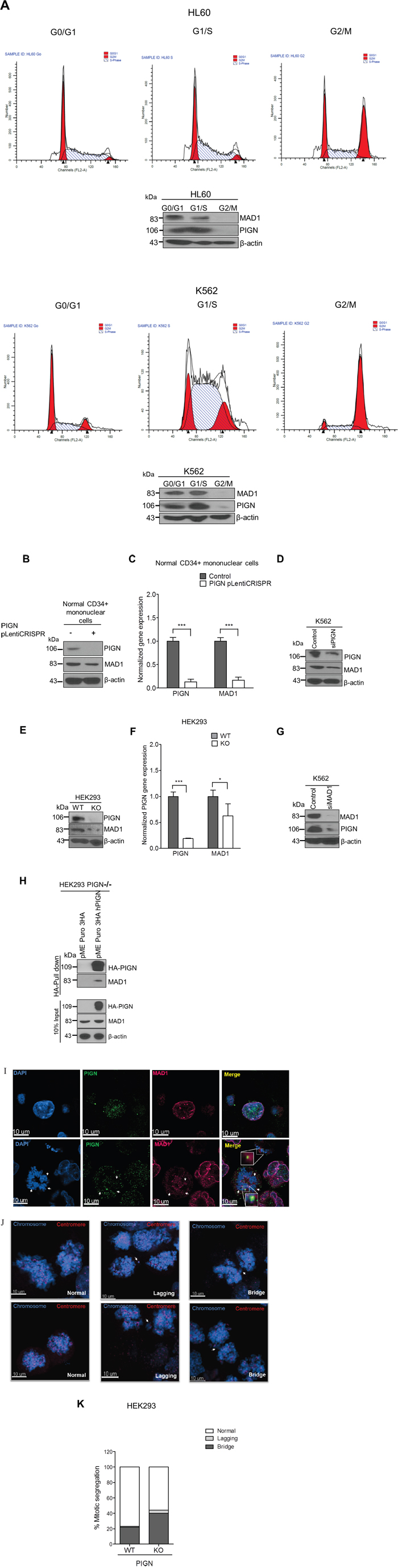 PIGN loss induced chromosomal instability via dysregulation of the spindle assembly checkpoint protein MAD1.