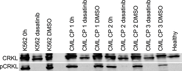 Ex vivo effect of dasatinib treatment on primary CP CML MNCs on BCR-ABL1 signaling as measured by phosphorylation of CRKL protein.