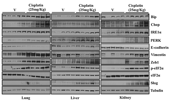 Treatment of mice with Cisplatin induces ER stress and EMT-like changes in multiple tissues.