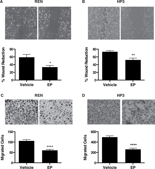 EP inhibits the motility and migration of MM cells.