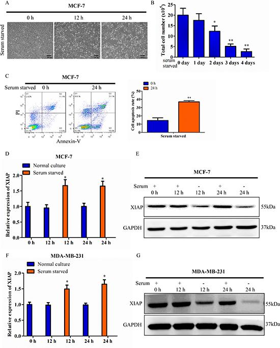 Discrepancy between XIAP mRNA and protein under serum starvation.