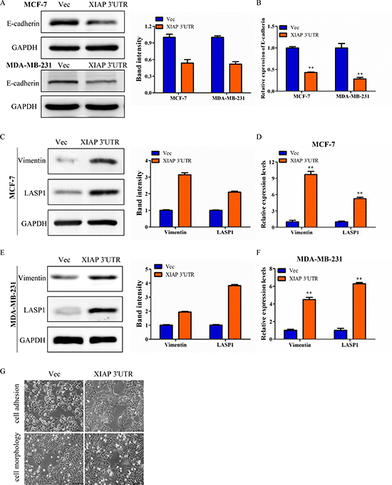XIAP 3′UTR was associated with EMT features of breast cancer.