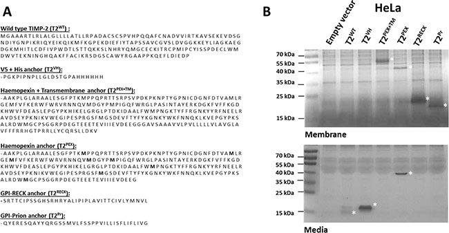 Amino acid sequences and membrane sequestration of TIMP-2s tagged with different C-terminal carriers in stably-transduced HeLa cells.