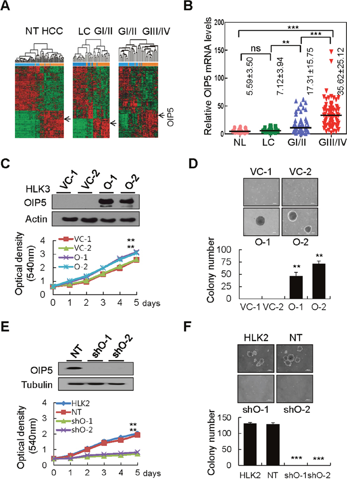 OIP5 expression in HCC tissues and cell lines modulates tumor cell growth.