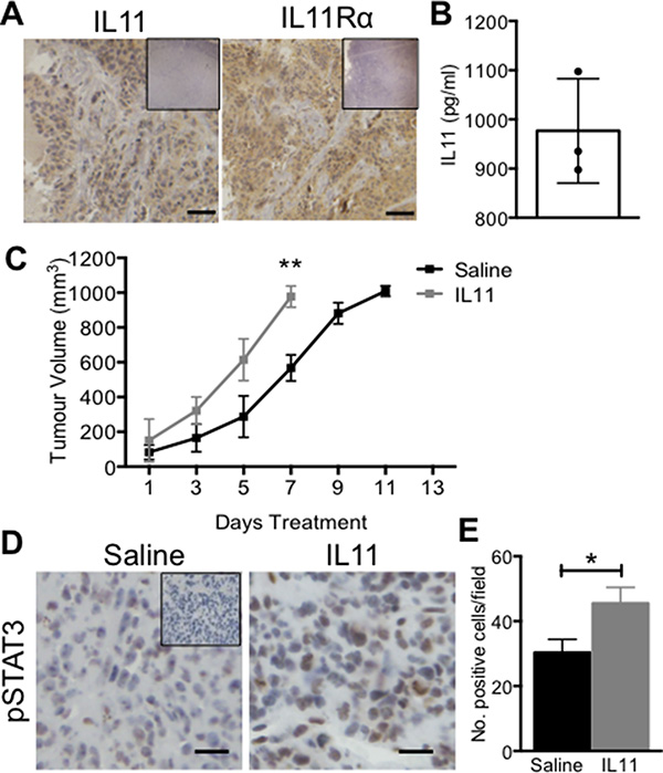The effect of IL11 on AN3CA xenograft tumour growth in vivo.