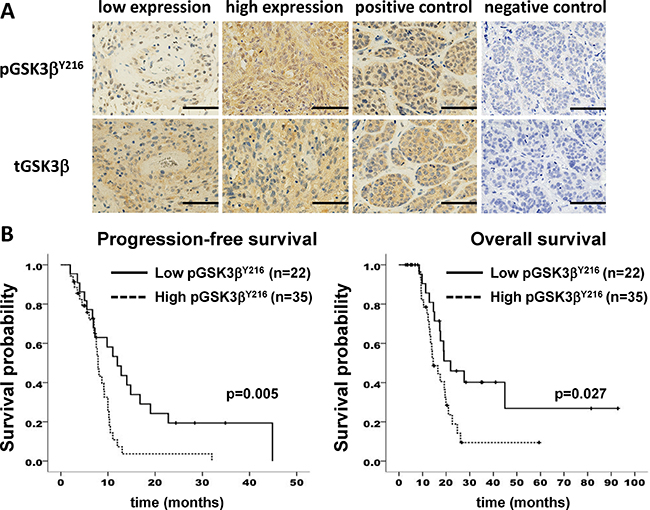 GSK3β activation correlates with poor survival in patients with glioblastoma.