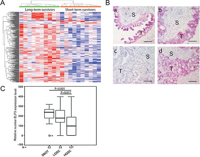 ELF3 expression in ovarian tumor tissue samples.