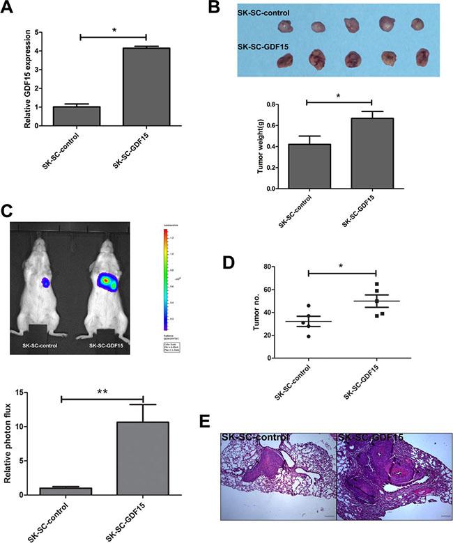 GDF15 overexpression promotes the tumorigenesis and metastasis of SCs in vivo.
