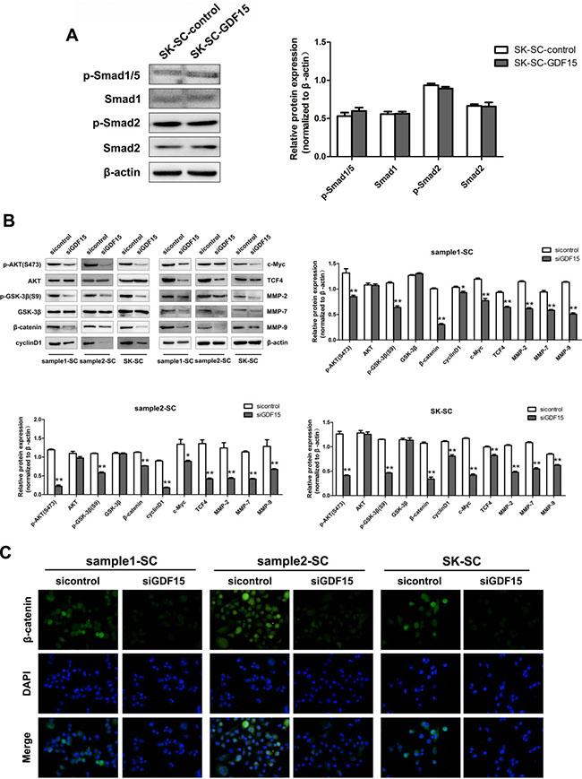 GDF15 knockdown inhibits AKT/GSK-3β/β-catenin signaling pathway in SCs.