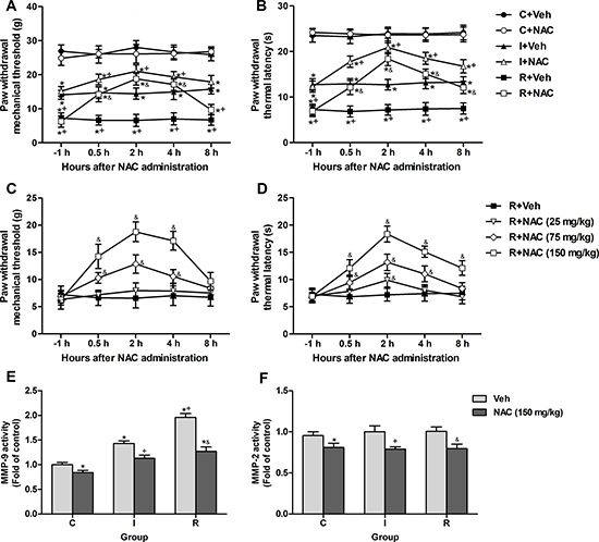 Single intraperitoneal injection of NAC at 24 h after surgery attenuated intraoperative remifentanil-induced hyperalgesia and suppressed the remifentanil-induced activation of MMP-9.