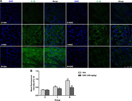 NAC inhibited remifentanil-induced IL-1β up-regulation via MMP-9 in DRGs.