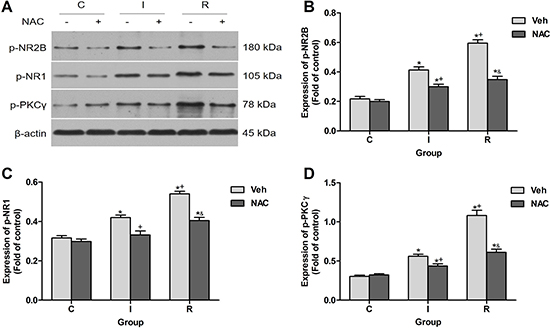 NAC inhibited remifentanil-induced NR2B phosphorylation, NR1 phosphorylation and PKCγ phosphorylation in ipsilateral spinal cord dorsal horn.