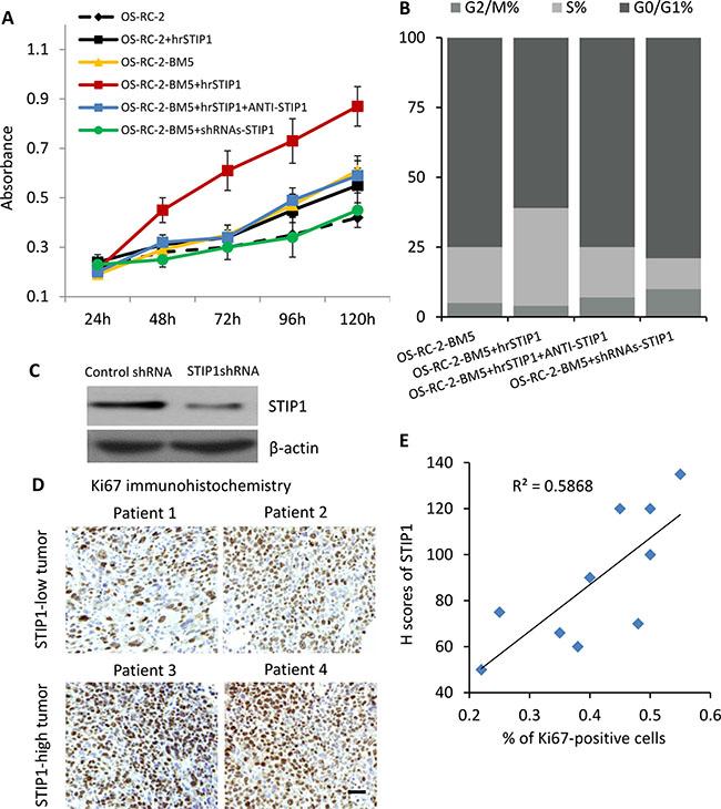 STIP1 promotes tumor proliferation.