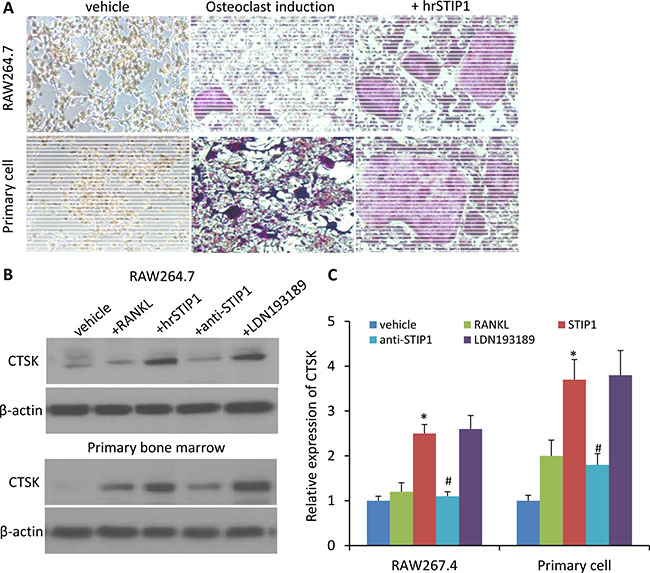 STIP1 promotes osteoclast differentiation.