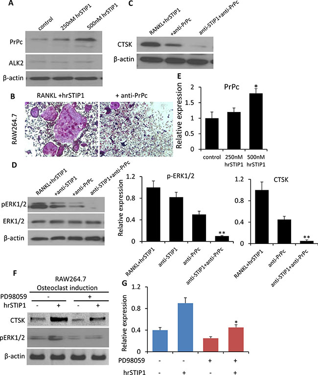 Activation of STIP1-PrPc-ERK1/2 signaling in osteoclast differentiation.