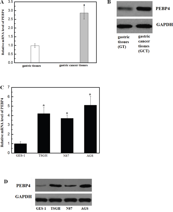 Expression of PEBP4 was upregulated in gastric cancer tissue samples and cell lines.