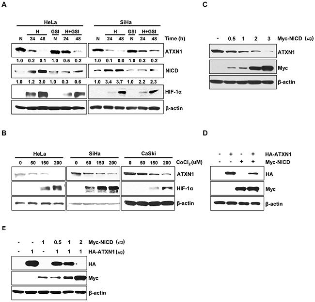 NICD downregulates ATXN1 expression.