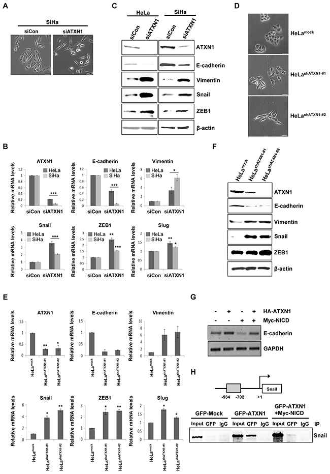 Inhibition of ATXN1 expression induces EMT-like phenotypes.