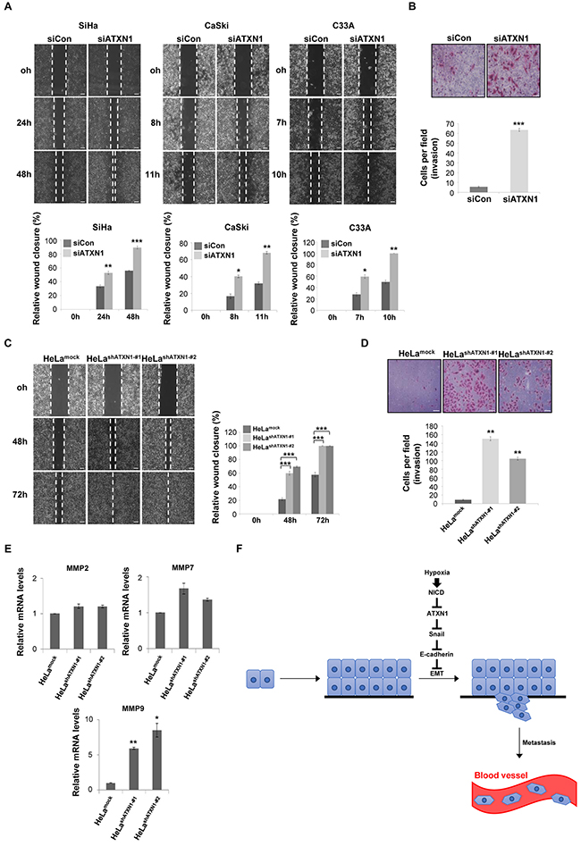 Inhibition of ATXN1 expression increases the migration and invasiveness of cervical cancer cell lines.
