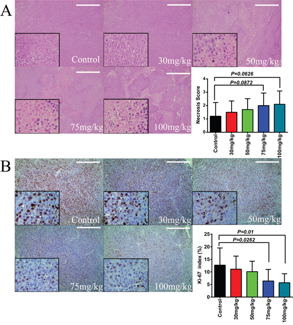Effect of itraconazole on tissue necrosis and expression of Ki-67 in melanoma in vivo.