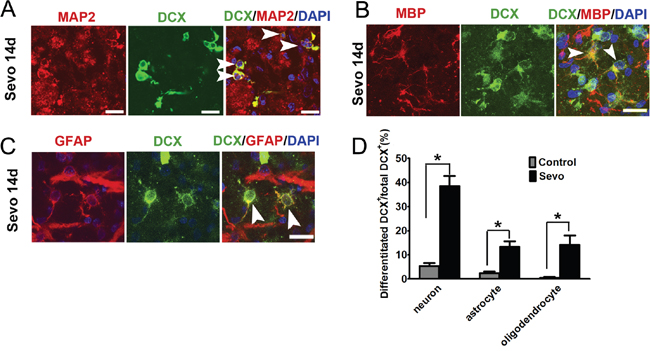 Sevoflurane preconditioning accelerated neuroblasts differentiated into neurons, astrocytes, and oligodendrocytes in the infarct.