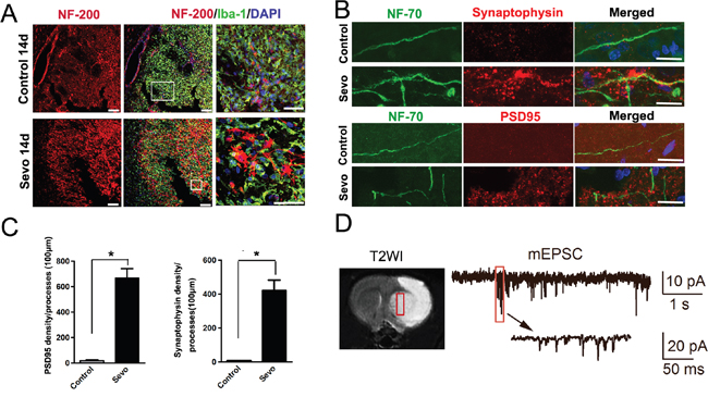 Sevoflurane preconditioning enhanced structural and functional recovery of the ischemic brain.