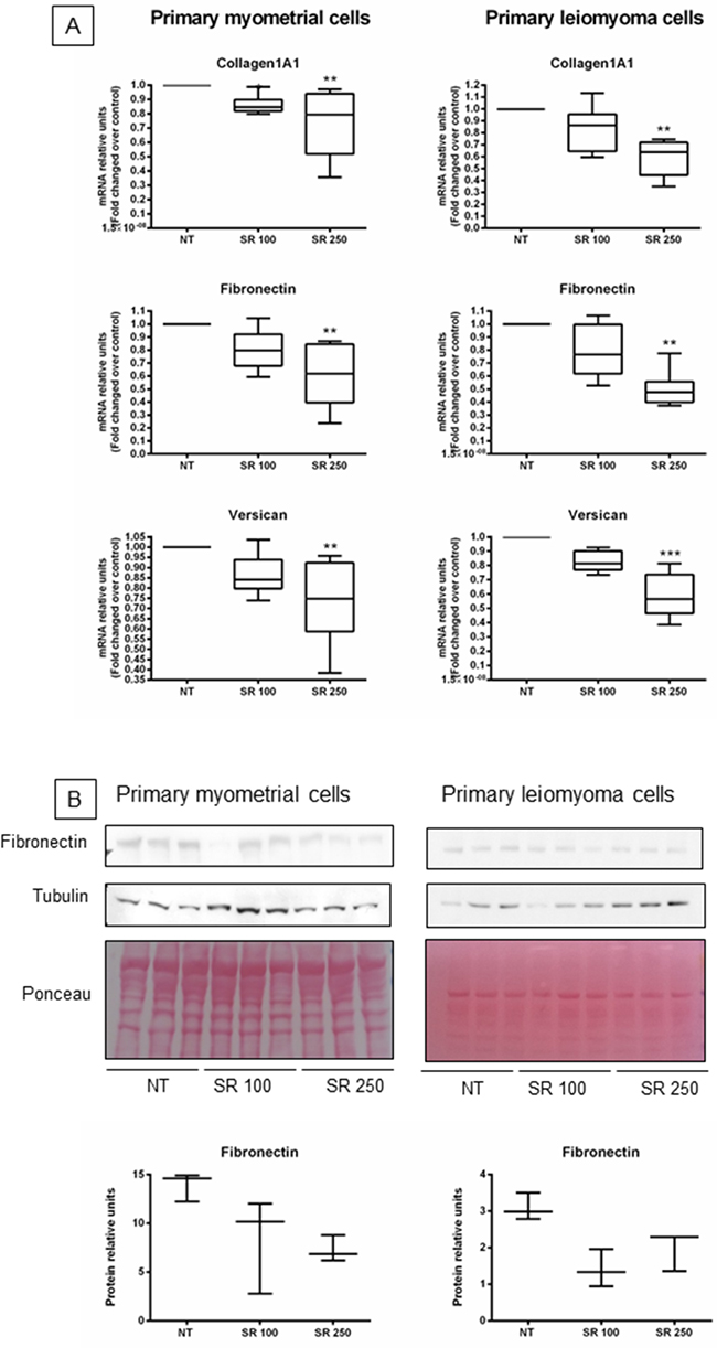 Effect of strawberry extract on extracellular matrix components expression in myometrial and leiomyoma cells.