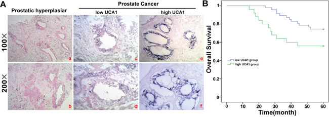 UCA1 is over-expressed in PCa tissue.