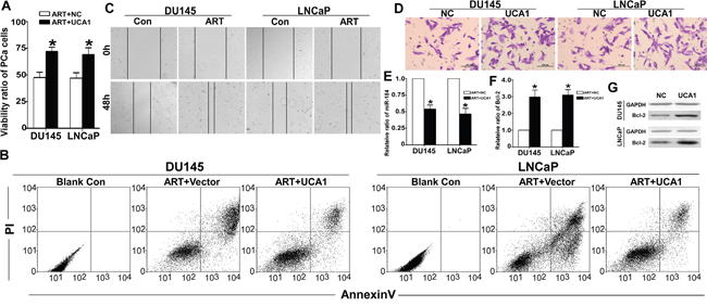 UCA1 is involved in the effect of ART on PCa cells.