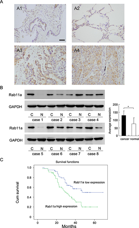 Expression of Rab11a in non-small cell lung cancers.
