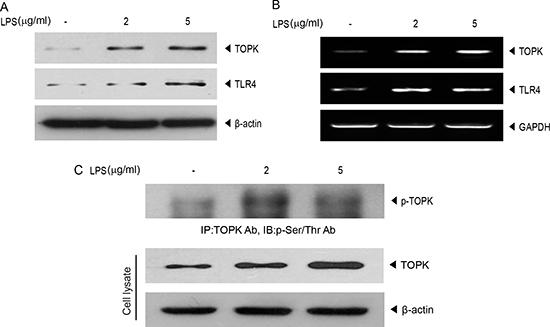 LPS promotes endogenous expression of TLR4 or TOPK, and TOPK phosphorylation in MCF7 cells.