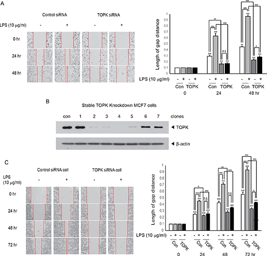 Knocking down of TOPK abrogates LPS-induced breast cancer cell migration.