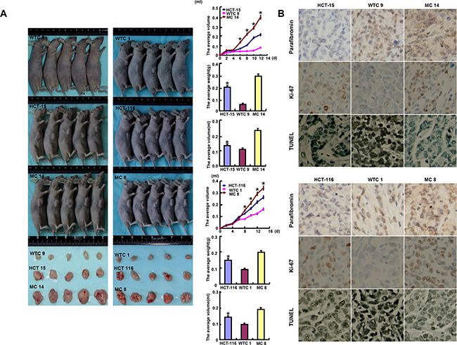 The roles of parafibromin overexpression on the tumor growth of colorectal cancer cells in nude mice.