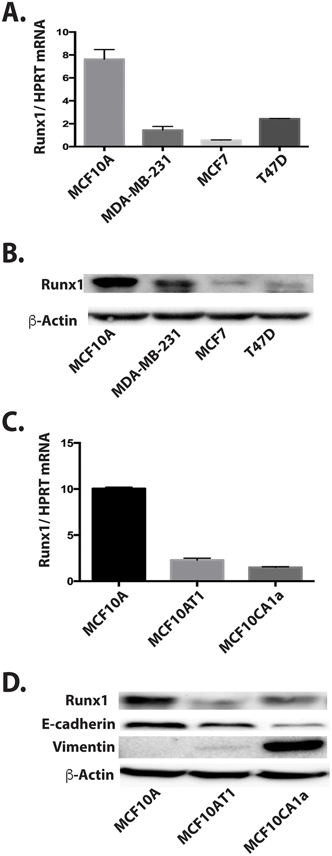 Decreased Runx1 expression is related to breast cancer progression in cell models.