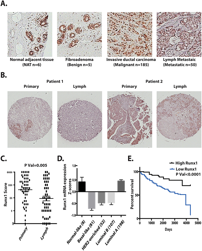Runx1 expression in breast tumors correlates with metastasis, tumor subtype and survival.