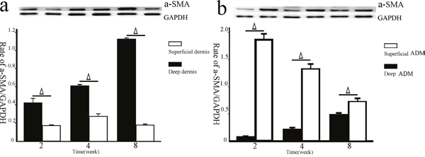 The a-SMA expression in the deep/superficial dermis and ADM groups by western blotting.
