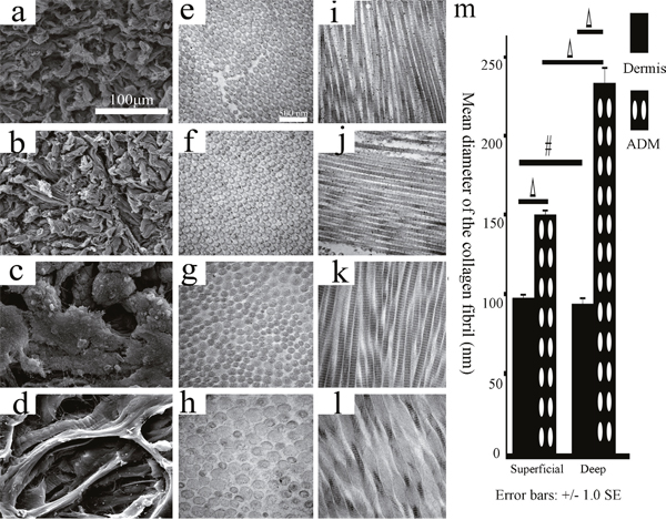 The histological structures of the superficial/deep dermis and ADM of the FRDPs by TEM and SEM.