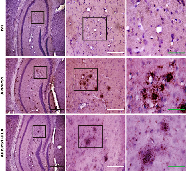 Deposition of beta amyloid in the hippocampus of mice in the WT, APP/PS1 and APP/PS1+FLX groups.
