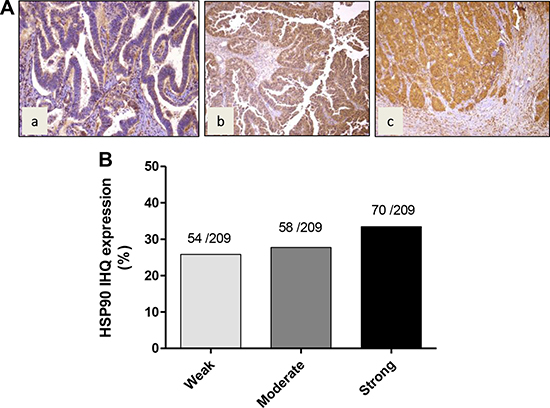 Immunohistochemical staining of HSP90 in gallbladder cancer tissue.