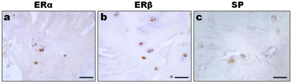 Expression of ER and SP in the nucleus pulposus cells.