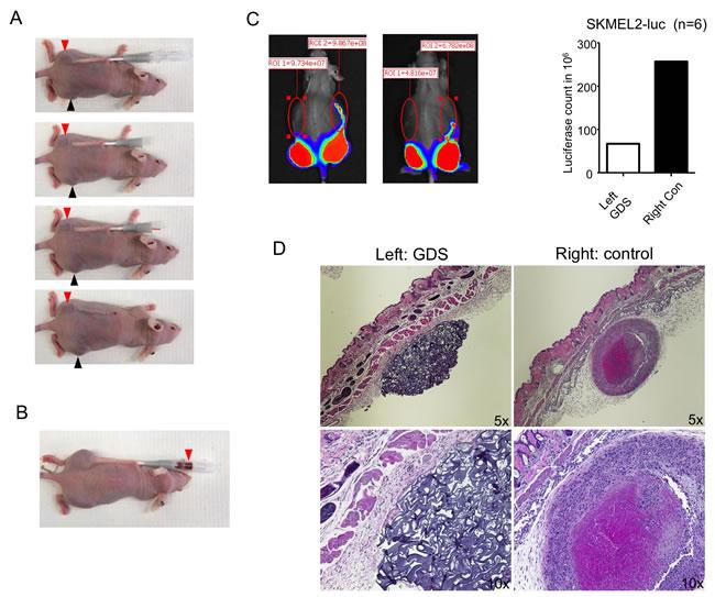 GDS prevented tumor seeding in biopsy of subcutaneous SKMEL2 tumor.