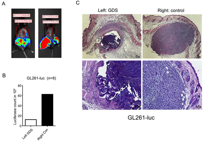 GDS prevented tumor seeding in biopsy of subcutaneous GL261 tumor.