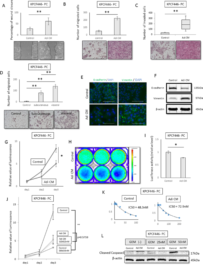Effects of adipose tissue conditioned medium (Adi CM) on pancreatic cancer cell function in vitro.