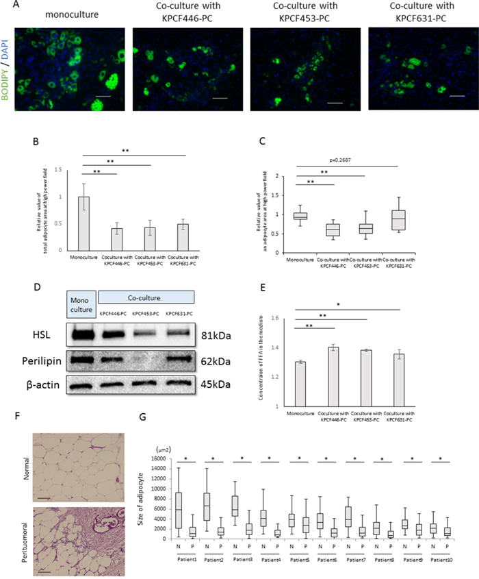 Effects of cancer cells on mature adipocyte size.